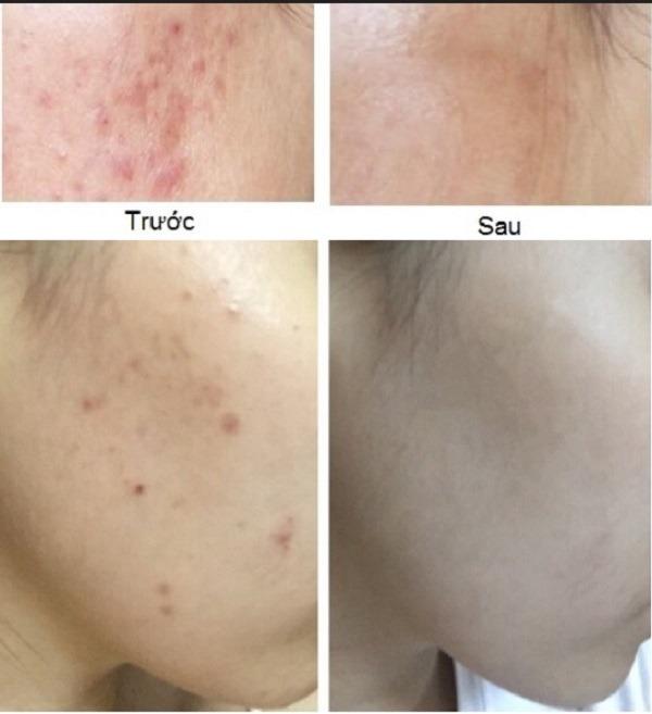 Hình ảnh so sánh kết quả trước và sau khi điều trị mụn bằng máy lăn kim Dr Pen