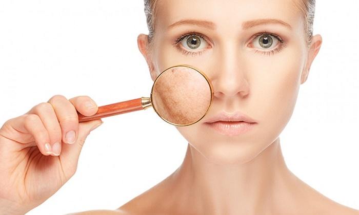 Nám da xuất hiện từ nguyên nhân bên ngoài và bên trong cơ thể