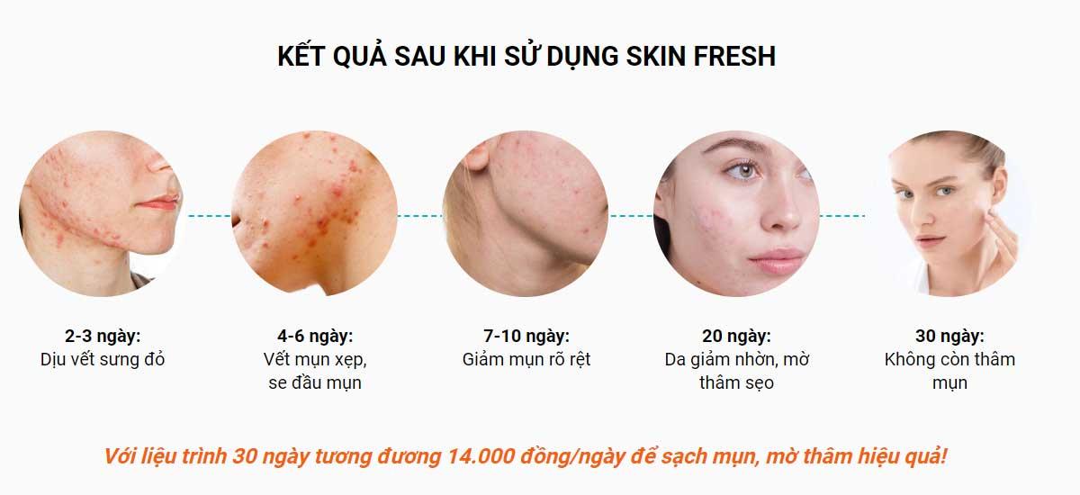 Sử dụng xịt lợi khuẩn Skin Fresh bao lâu thì hiệu quả?