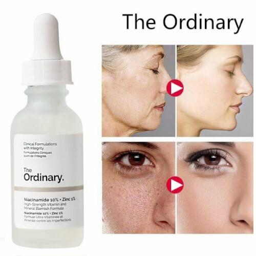 Công dụng bất ngờ của The Ordinary Niacinamide 10 + zinc 1
