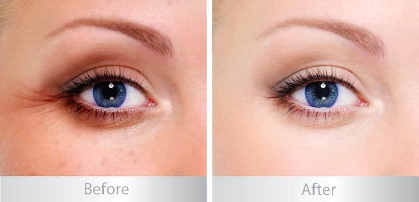Hiệu quả trước và sau khi sử dụng kem trị thâm quầng mắt Emco