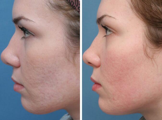 Chọn đúng sản phẩm sẽ giúp bạn cải thiện làn da như mong muốn