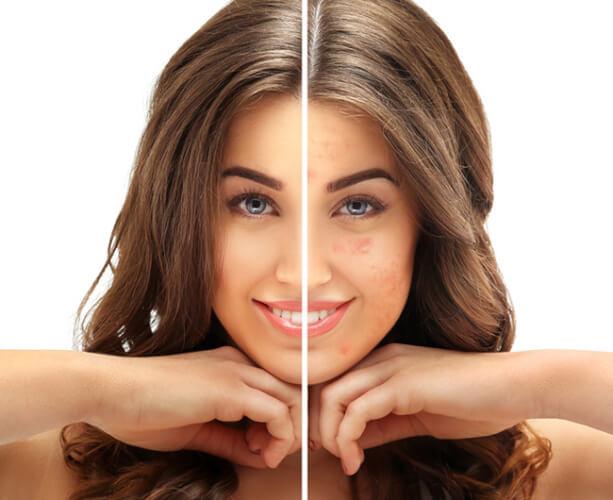 Kem trị sẹo rỗ là phương pháp được ưu tiên