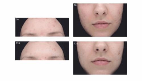 Làn da sẽ được phục hồi theo thời gian khi kiên trì sử dụng sản phẩm.