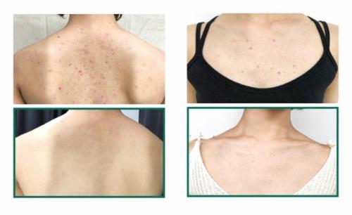 Các vấn đề về mụn trên cơ thể được cải thiện rõ rệt.