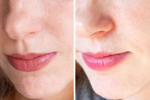 Sự cải thiện của làn da sau một thời gian trải nghiệm kem A313.