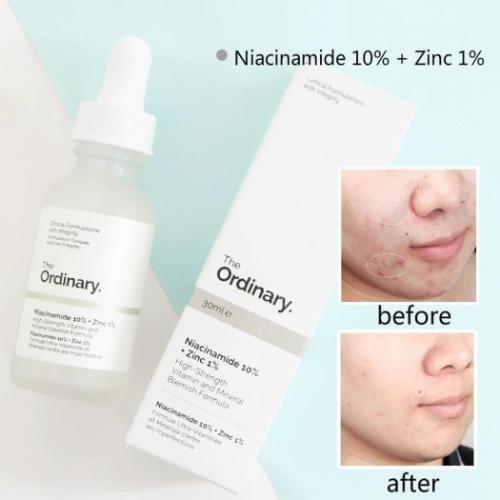 Serum trị mụn thâm The Ordinary Niacinamide 10% + Zinc 1%