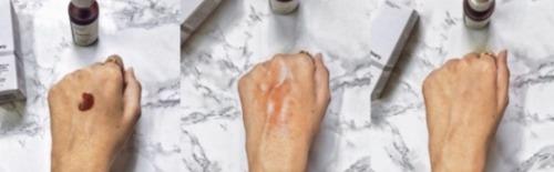 Sử dụng serum AHA 30% + BHA 2% peel da này với tần suất 1 lần trên tuần và tối đa chỉ 2 lần sẽ đem đến cho bạn kết quả bất ngờ.