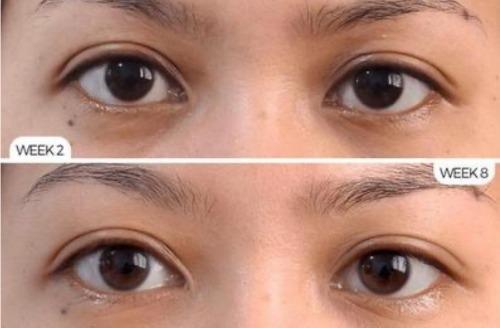 Đôi mắt nhanh chóng lấy lại sức sống và vẻ khỏe mạnh, tinh anh sau một thời gian sử dụng sản phẩm.