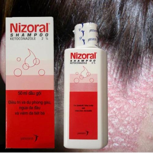 Nizoral điều trị dứt điểm nấm, viêm bã nhờn và gàu, giúp da đầu trở nên khỏe mạnh.