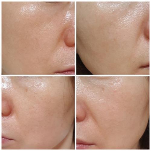 làn da sau khi sử dụng Vitamin C Cream