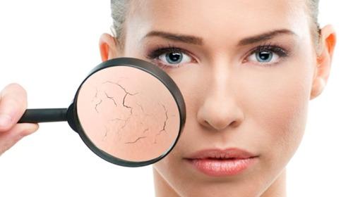 Da khô có thể khô hơn nếu không chọn đúng sản phẩm