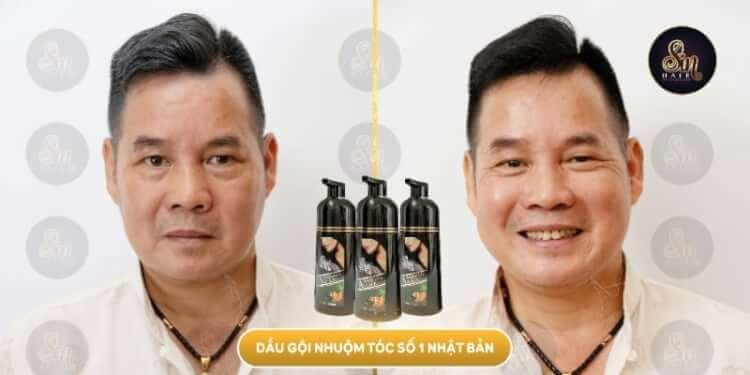 hieu-qua-phu-den-dau-goi-Sin-Hair